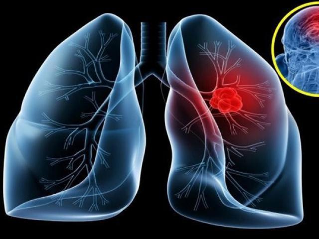 Không chỉ thuốc lá là sát thủ gây ung thư phổi, không biết điều này cũng có thể giết chết bạn
