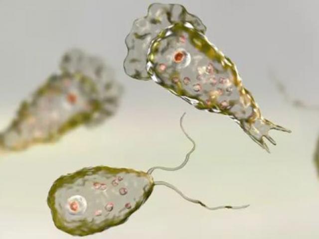 Người đàn ông bị nhiễm vi khuẩn ăn não khi đi tắm suối nước nóng