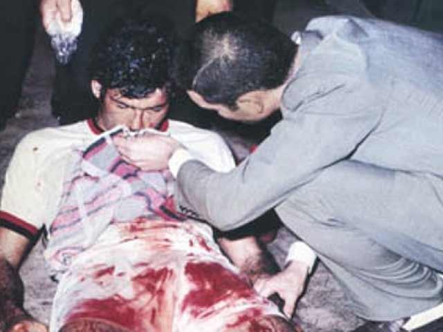 Trận đấu bạo lực nhất lịch sử: Cầu thủ bị đánh biến dạng mặt, bị cảnh sát bắt cóc