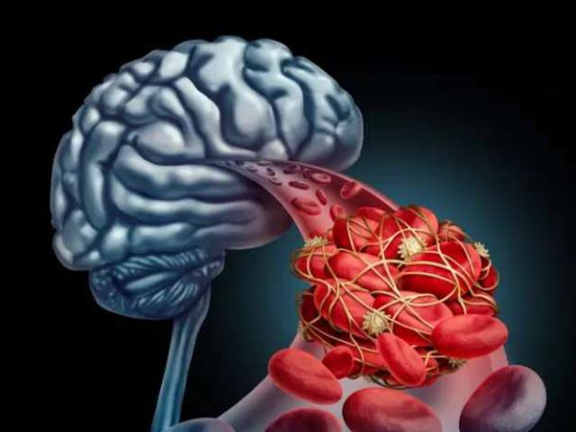 Nhồi máu não đến quá nhanh, nhận biết được 5 triệu chứng bạn sẽ tự cứu sống mình