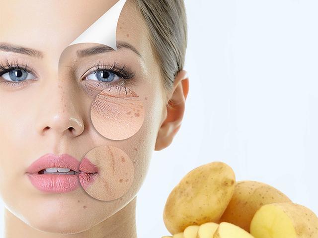 12 Cách trị nám da tại nhà từ thiên nhiên an toàn và hiệu quả nhất
