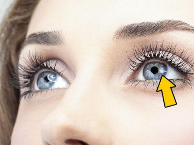 Những dấu hiệu ở mắt cho thấy sức khỏe của bạn đang có vấn đề