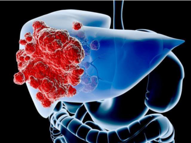 Ngứa 2 bộ phận này trên cơ thể, dị ứng hay ung thư gan ghé thăm?