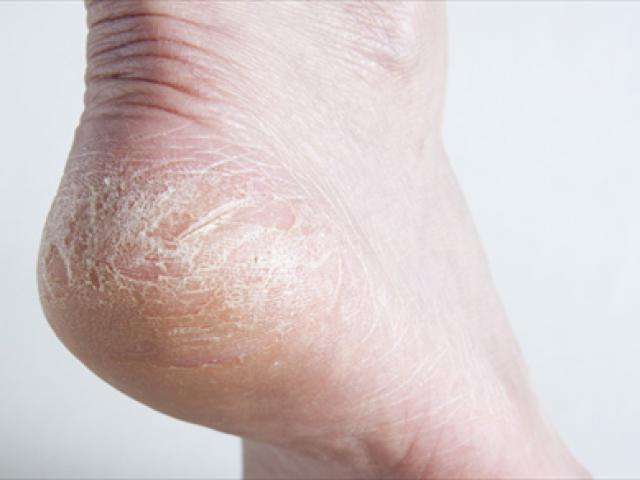 4 dấu hiệu ở bàn tay, bàn chân cảnh báo bệnh ung thư gan