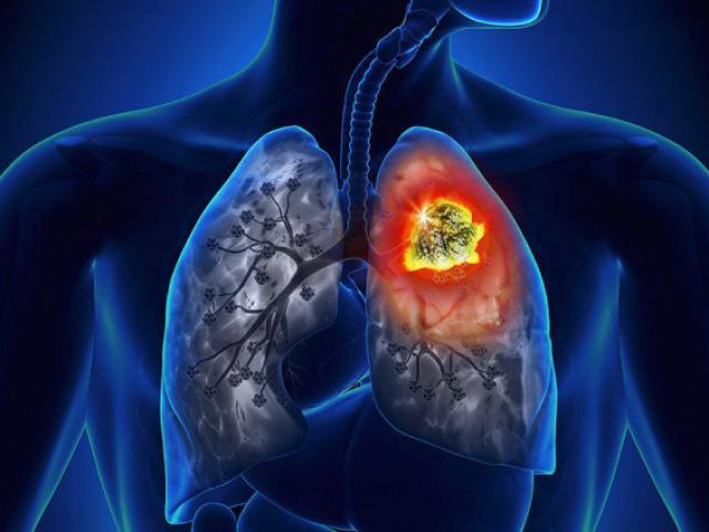 """Hai vợ chồng cùng mắc ung thư phổi: bàn tay phát """"tín hiệu"""" lạ nhưng không để ý"""