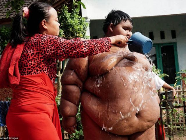 Cậu bé 10 tuổi béo nhất thế giới nặng gần 2 tạ