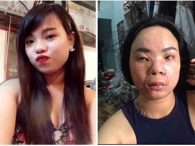 Cô gái xinh đẹp bị tạt axit biến dạng, bạn trai 5 năm nhìn thấy chỉ nói đúng 1 câu