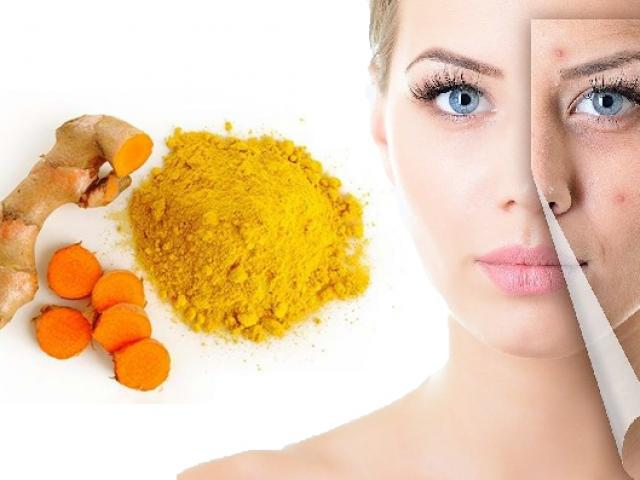 15 Cách trị mụn thâm tại nhà hiệu quả nhanh nhất cho mọi làn da