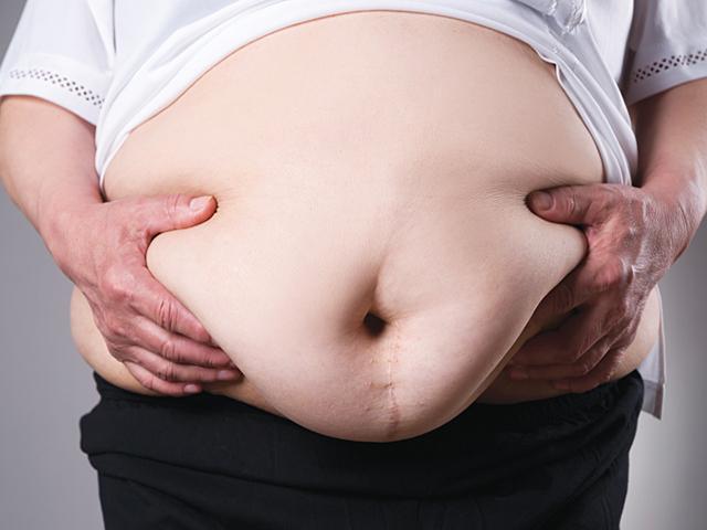Bụng quá béo, người đàn ông bị thủng dạ dày, thối nội tạng mà không hề có cảm giác đau đớn