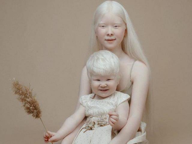 """Hai chị em bạch tạng """"gây bão"""" thế giới vì đẹp phi thường và điều đặc biệt trong gia đình"""