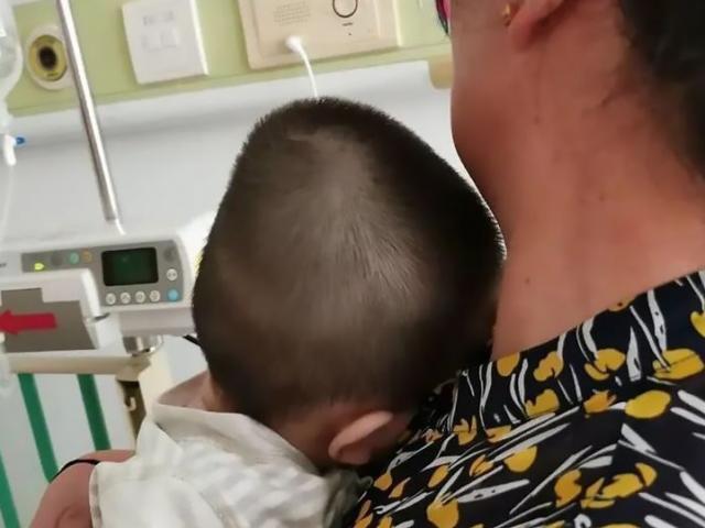 Em bé bị chai dầu gội rơi trúng gây biến dạng đầu