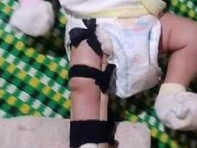 Lời khai của người cha nghi đánh con ruột 2 tháng tuổi gãy chân