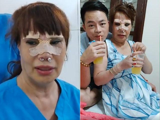 """""""Cô dâu 62 tuổi"""" chi tiền khủng nâng mũi, sửa lông mày, khẳng định vẫn tiếp tục thẩm mỹ"""