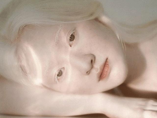 Vẻ đẹp như công chúa tuyết của nữ sinh Hà thành mắc bệnh bạch tạng