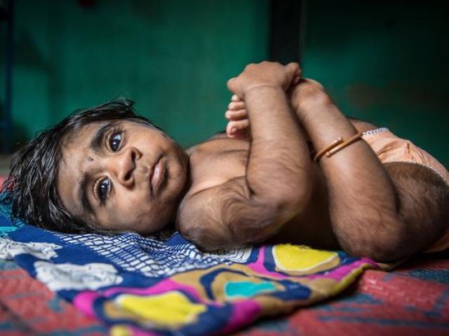 """Mẹ đau khổ khi sinh con trai """"ma sói"""" tỉ lệ gen hiếm 1/1 tỉ"""