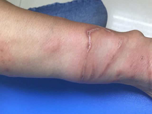 Tắm biển về bị bỏng loét da, bác sĩ chỉ ra nguyên nhân
