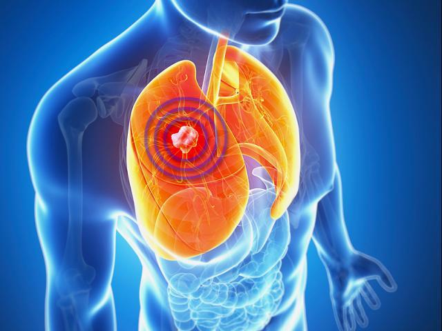 """90% gia đình Việt có 8 thứ là """"sát thủ"""" của 2 lá phổi, nguy cơ gây ung thư cao"""