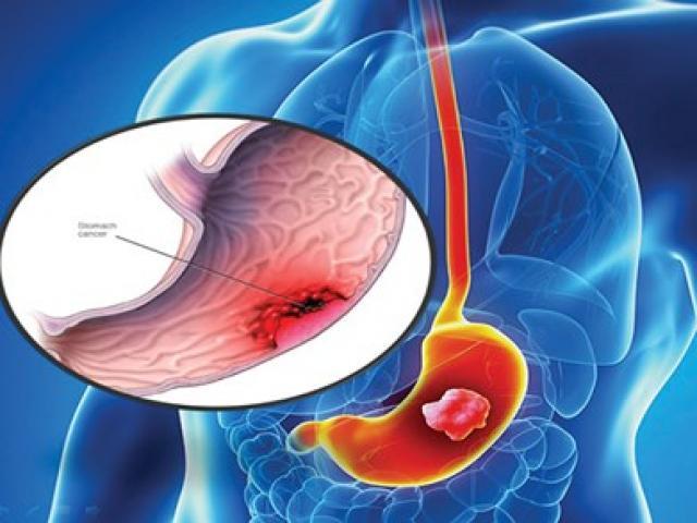Ung thư dạ dày do thói quen ăn mặn, lười khám bệnh