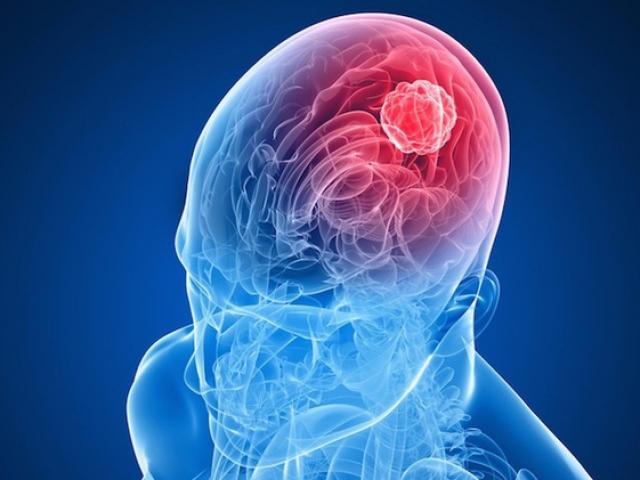 """8 dấu hiệu âm thầm của căn bệnh """"sát thủ"""" mang tên ung thư não"""