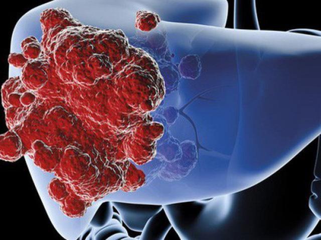 Chuyên gia lý giải vì sao ung thư gan ở Việt Nam vọt lên vị trí hàng đầu thế giới