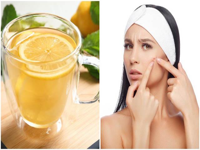 13 vấn đề có thể điều trị bằng một ly nước chanh thay vì uống thuốc
