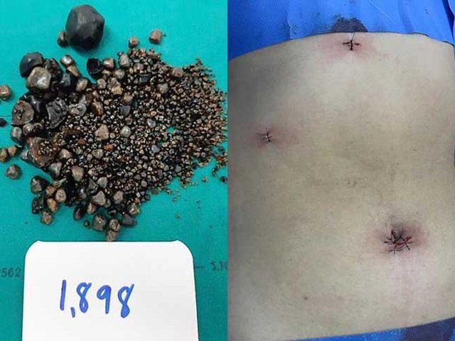 Bác sĩ gắp ra gần 2.000 viên sỏi mật trong bụng cụ bà 60 tuổi bị táo bón