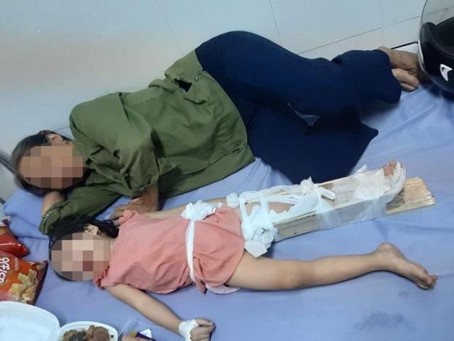 Học sinh ở Hà Nội ngã gãy chân tại trường: Phụ huynh 'tố' hiệu trưởng vô cảm