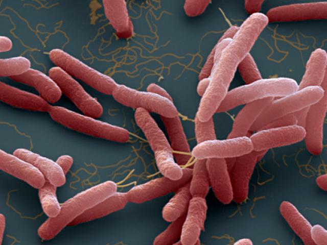 Hướng dẫn phòng tránh vi khuẩn ăn mòn cơ thể Whitmore