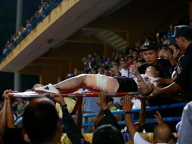 CĐV Nam Định bắn pháo sáng và gây sự cảnh sát: Bóng đá châu Âu xử lý thế nào?