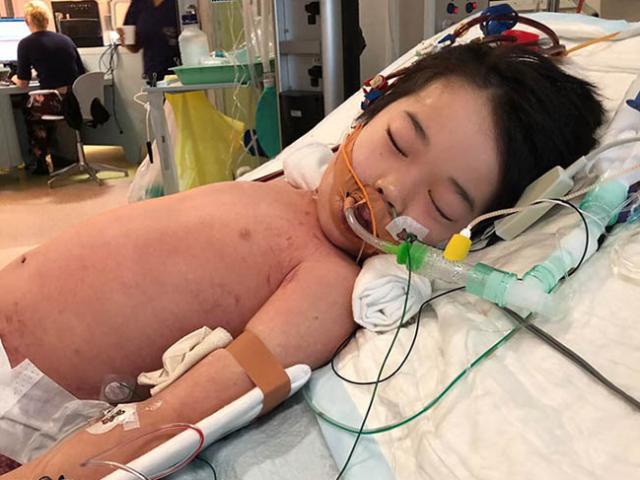 """Cậu bé 4 tuổi bị sốt và đau chân nhưng không ngờ lại bị mắc bệnh do """"vi khuẩn ăn thịt"""""""