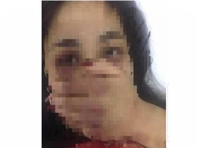 Công an triệu tập bác sĩ bị tố đánh đập dã man nữ điều dưỡng