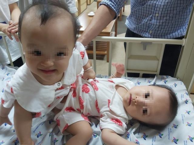 100 y bác sĩ tham gia ca đại phẫu tách cặp song sinh dính nhau phức tạp nhất Việt Nam