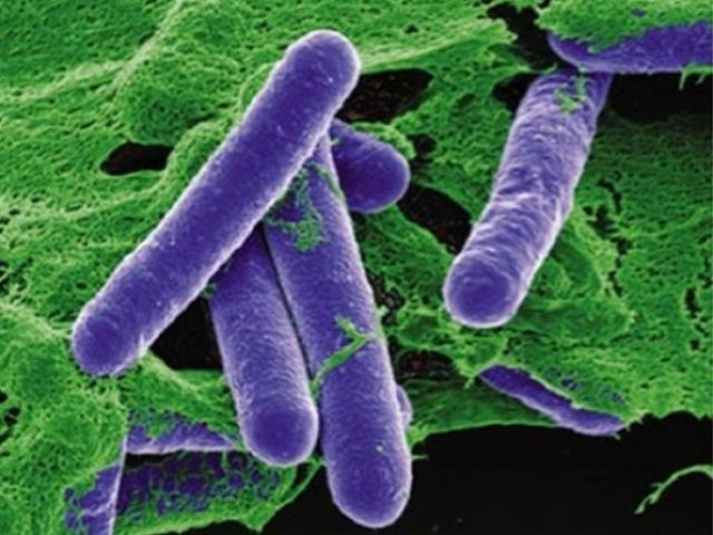 Vụ ngộ độc botulinum chấn động nước Mỹ