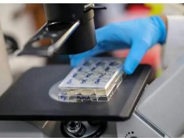 Phát hiện mới về kháng thể của bệnh nhân COVID-19
