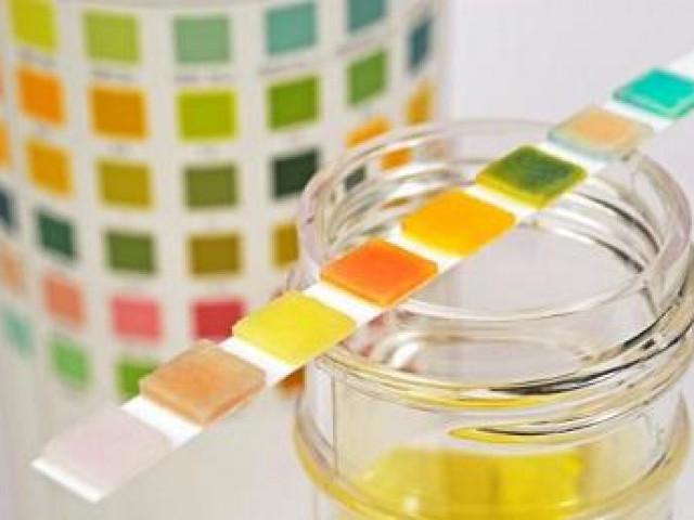 Thay đổi màu sắc nước tiểu cảnh báo nguy cơ về sức khỏe