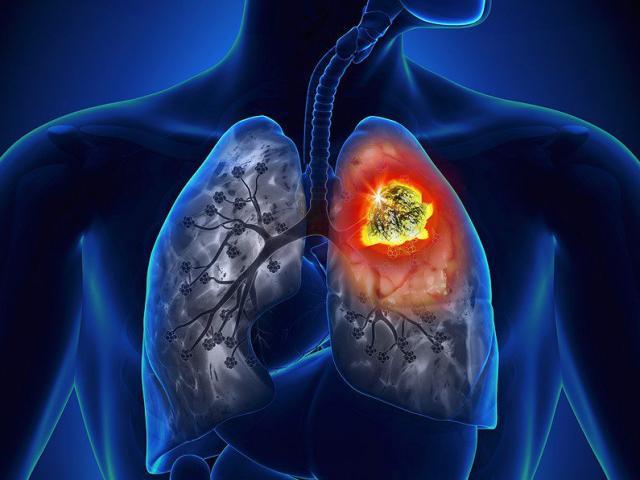 Người mắc ung thư phổi tuyệt đối không được nhầm lẫn những điều này