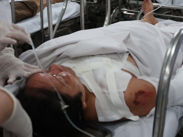 Một phụ nữ bất ngờ bị chồng hơn 22 tuổi tạt axit