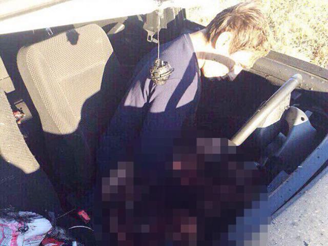 Thanh niên Nga vô tình rút chốt khi chụp ảnh với lựu đạn