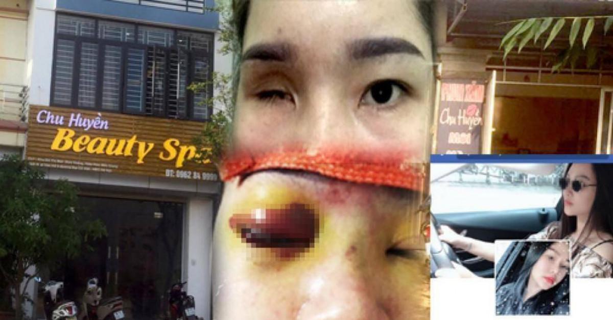 Thẩm mỹ viện Chu Huyền lên tiếng vụ nâng mũi khiến khách mù mắt