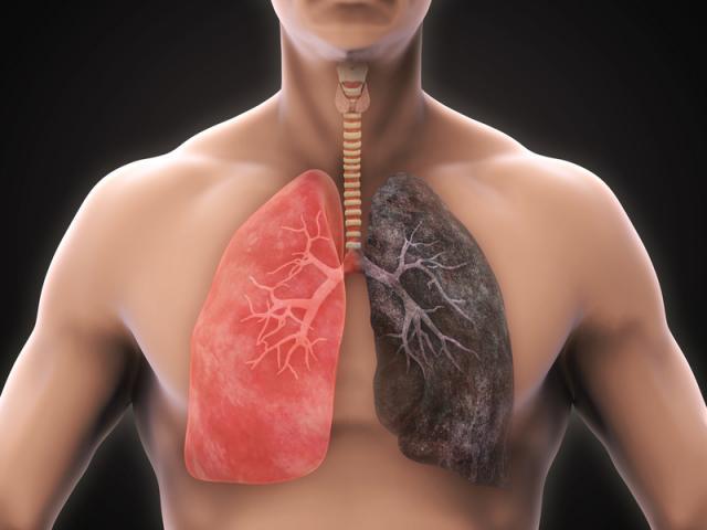12 dấu hiệu cực sớm phát hiện ung thư phổi, cần đi khám ngay lập tức