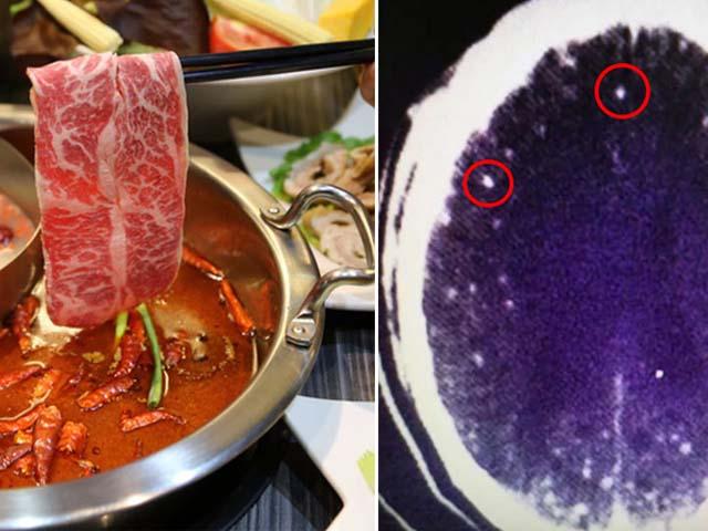Không nấu chín thịt đúng cách khi ăn lẩu, người đàn ông bị nhiễm ký sinh trùng não