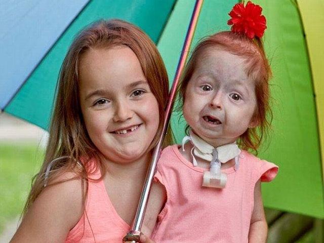 Hội chứng hiếm gặp khiến cô bé không thể khóc và phải giao tiếp bằng ngôn ngữ ký hiệu