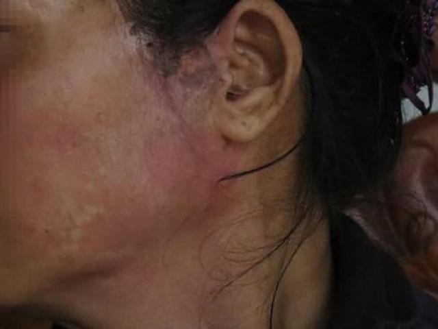 Nỗi đau của người vợ bị chồng nhẫn tâm hắt nước sôi vào mặt