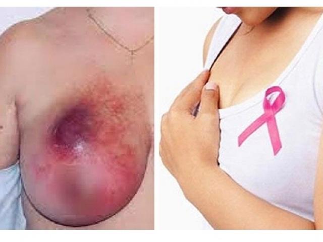 Nhiều phụ nữ trẻ đã mắc ung thư vú, bác sĩ chỉ rõ dấu hiệu nhận biết