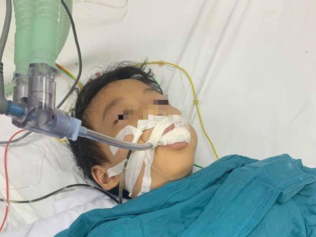 Hải Phòng: Bé trai 6 tuổi nguy kịch vì ăn nhầm thuốc diệt chuột
