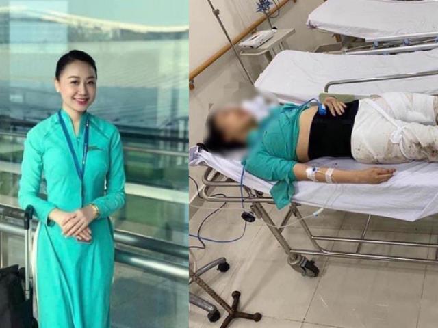 Xét xử tài xế Mercedes gây tai nạn khiến nữ tiếp viên hàng không bị thương tật 79%