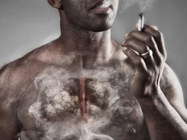 Ngoài ung thư vòm họng, bạn còn có nguy cơ mắc thêm 9 loại ung thư nếu tiếp tục hút thuốc lá