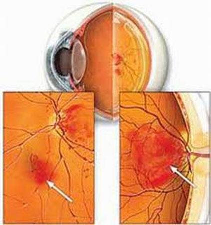 Bệnh đái tháo đường và những nguy cơ về mắt 1