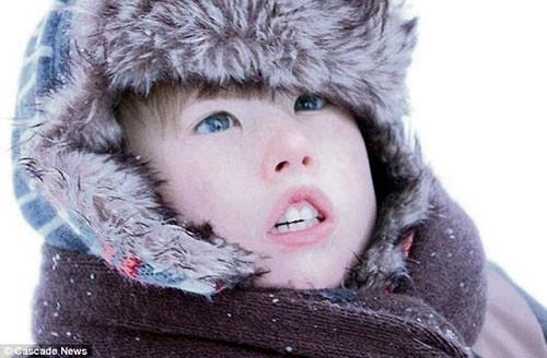 Bệnh lạ: Cậu bé có gương mặt 'hóa đá' - 1