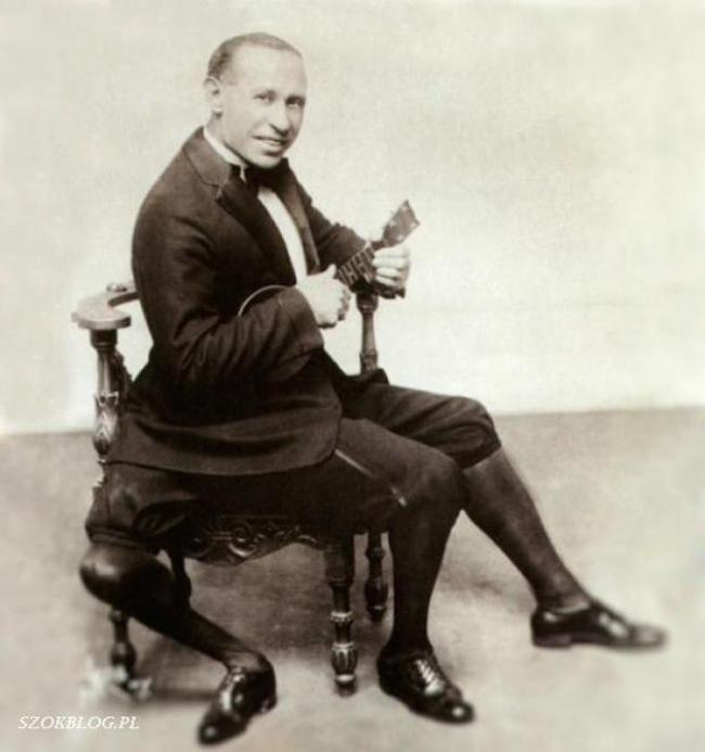 Frank Lentini (1889 - 1966), tới từ Siracusa,     Sicily, Italia có tới 2 'của quý' với chức năng hoàn chỉnh và 3 chân.